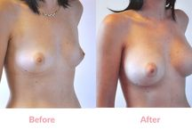 Breast Augmentation (armpit approach before & afters) / The major advantage of Trans-Axillary Technique (armpit approach) is the avoidance of any tell-tale scar anywhere on, under or around the breast making it a very worthwhile option for those who could feel self-conscious about a scar under the breast or for those with a tendency to pigmented scars – a risk with brown or Asian skin. #breastaugmentation #breastimplants