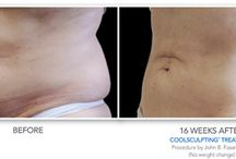 Body Contouring with CoolSculpting / Unlike other fat removal procedures, this is non-invasive, so patients can reduce fat from their problem areas without the risks associated with surgical procedures. There is no anesthesia, no needles, and no downtime, so patients can return to their normal activities immediately.