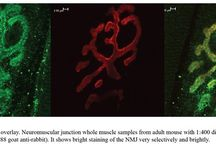 Pre-Synaptic Markers / Images showing the localization of Pre-synaptic neuronal markers.
