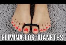 Juanetes