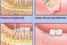 Chirurgia  / Dall'estrazione più semplice alla chirurgia vera e propria.