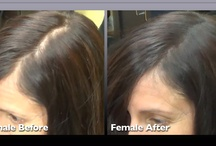 Hair Loss Before & After with Infinity Hair Loss Concealing Fibers / Before & After pictures of clients who have used Infinity Hair Loss Concealing Fibers
