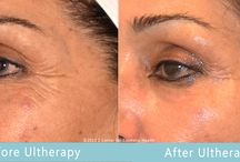 Before & After / Before & After photos of our clients