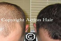 Regrow Hair / Action Hair offers male and female hair loss arrangements and viable characteristic hair loss treatment intended to be straightforward, solid and sparing, giving men and ladies the chance to attain the best common hair development results.