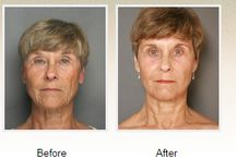 Smartskin® Laser / With the Smartskin® Laser Skin Renewal system, Dr. Petti can help you achieve your cosmetic enhancement goals much quicker and more effectively than other laser skin rejuvenation treatments.