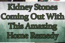 stone kidney