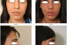 Rhinoplastie ou Chirurgie du Nez / Le but de la rhinoplastie est d'affiner, embellir le nez en respectant les proportions du visage et l'ethnicité du patient. Le résultat doit également être durable dans le temps.