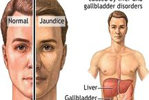 Gilbert Syndrome