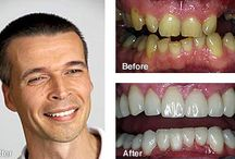 Dentistry to Replace Missing Teeth