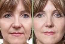 Exercising The Face And Neck / Handy Neck And Facial Massaging Aerobics For A Facelift Without Surgery