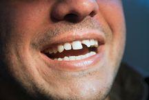 Diş Kırılması nedir ?