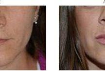 Augmentation des  Lèvres / L'augmentation des lèvres peut être réalisée par injection d'acide hyaluronique ou par lipofilling.