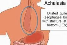 Achnical / Achnical Achalasia Symptoms, Causes and Treatment