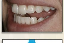 Orthodontics Dentistry Orlando FL / Orlando Florida dentist Dr. Gary Michaelson is pleased to offer his dental patients various alternatives to traditional orthodontics.  His services include: Invisalign, Six Month Smiles and Inaman Aligners.
