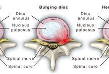 Back Pain Conditions / Back Pain Conditions