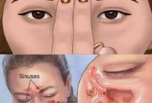sinuses and allergies