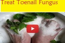 Natural Treatment at Home / Natural Treatment at Home