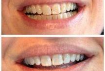 verzorging tanden