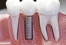 Dental Implants / Dental implants are modern dentistry's best option for replacing missing teeth. They offer a highly successful, long-lasting, and totally natural-looking substitute that actually becomes part of the jawbone and helps maintain its health. #implants jupiter fl #cosmetic dentist jupiter fl