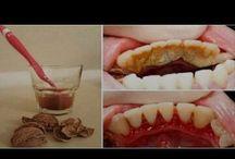 diş taşları için