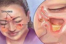 Sinusitis remedio