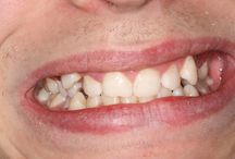 Patient before & after - Six Month Smiles / Pictures of how patients treated with Six Month Smiles at Elliott McCarthy Dental Care have had their smiles transformed