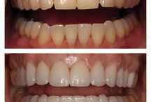Makeover Monday / Are you considering porcelain veneers or teeth whitening? Dr. Jamie Sands does free cosmetic consultations and will go over the best cosmetic options for you! Check out some of Dr. Sands work!