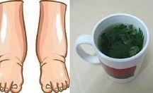 piernas hinchadas remedio