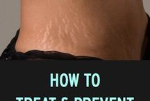 Stretch Mark and Scar Cream / Locating some resources for those stubborn stretch marks.