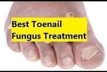Nail Fungus Treatment / Natural Nail Fungus Treatment