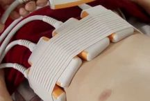 Global Liposuction Devices Market