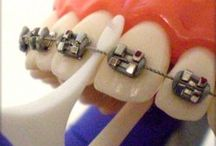 Cool tools for your braces