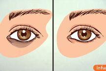 Как избавиться от тёмных кругов под глазами