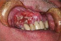 Oral Cancer / All about oral cancer, oral cancer symptoms, oral cancer causes, oral cancer treatments