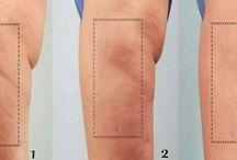 Cellulite non