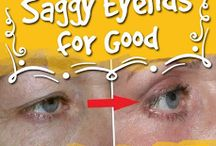 saggy eyelids