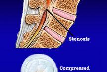 stenosis 2