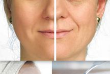 home remedies to remove agespots