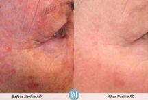 Nerium- Real Results / Nerium AD, skin antioxidant by Nerium International / by Angela Johnson