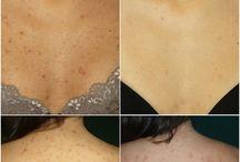 *Acne Treatment
