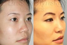 Asian Rhinoplasty / Asian Nose Surgery, or Asian Rhinoplasty, is one of the most popular Cosmetic Surgery procedures in Dr. Oleh Slupchynskyj's medical practice.
