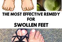 Swollen feet home remedy