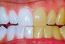 δόντια λεύκανση