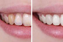 vybielit zuby