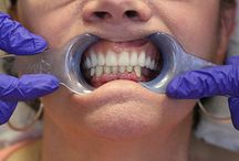 All-on-4 Dental Implants | April 2014 Patients of the Week