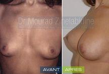 Augmentation mammaire Tunisie / cas avant et après d'augmentation mammaire en Tunisie par le Dr Mourad Zinelabidine