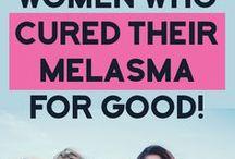Malasma