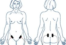 Tens unit placement