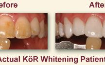 Professional Teeth Whitening Collinsville CT / Our teeth whitening dentist, in Collinsville CT 06019, makes use of KOR deep bleaching to whiten teeth. Through the use of this cosmetic dental treatment, our dentist is able to whiten even severely stained teeth and help you to achieve the smile makeover of your dreams! http://lifetimefamilydentistryct.com/cosmetic_dentistry_collinsville_ct.html