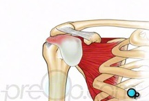 PreOp® Rotator Cuff Repair Open Surgery / Rotator cuff is the term given to describe a group of four tendons that work together to support and stabilize the shoulder joint.